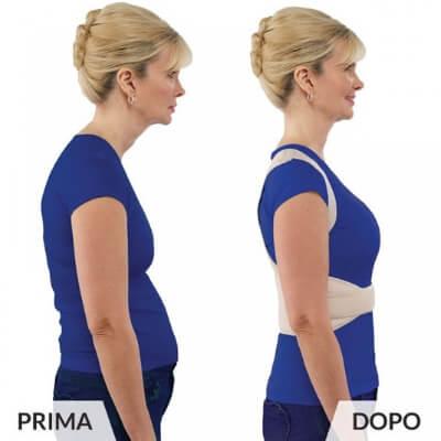 ok shoulder prima e dopo donna 02