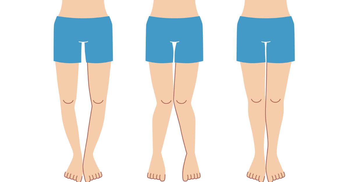 Si Possono Raddrizzare le Gambe Storte?