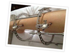 Rimedi chirurgici per curare il ginocchio valgo