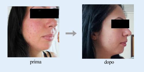 rimuovere acne testimonianza